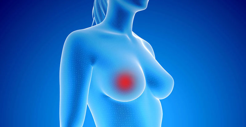 5 Things to Know About Breast Cancer and Exercise
